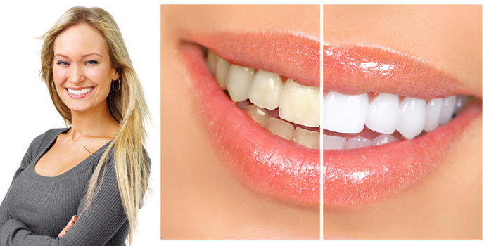 What Causes Teeth to Discolour forecasting